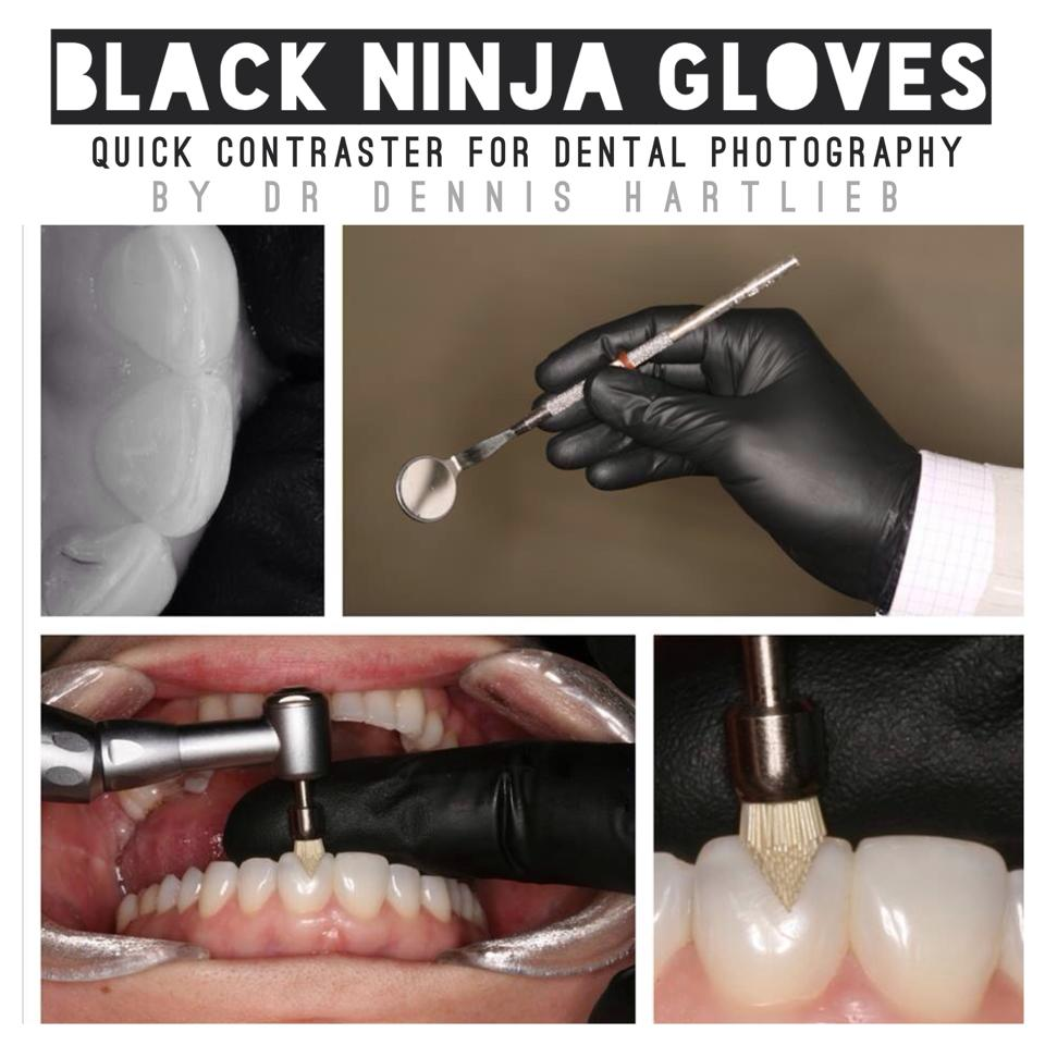 Dental-Photography-Toothgood